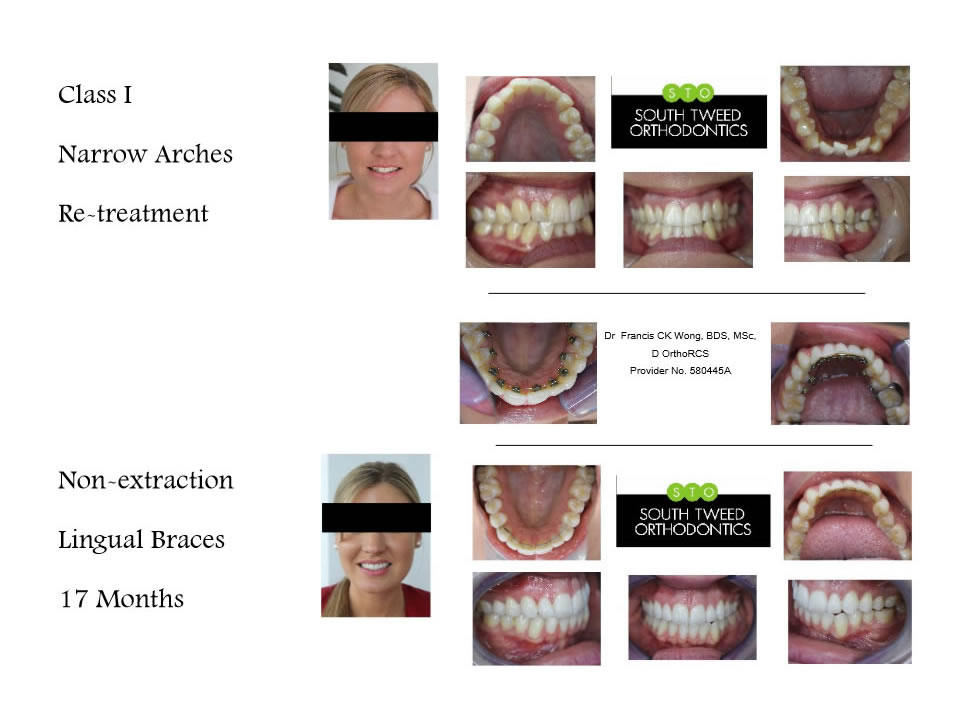 Lingual Braces | Tweed Heads | Gold Coast | Case Studies