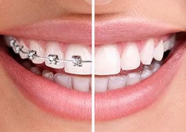 Lingual Braces | Tweed Heads | Gold Coast | braces-compared-small