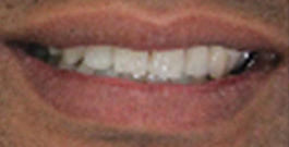 Lingual Braces | Tweed Heads | Gold Coast | Smile
