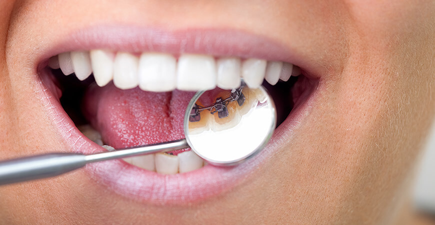 Lingual Braces | Tweed Heads | Gold Coast | Smile and the world smiles with you.